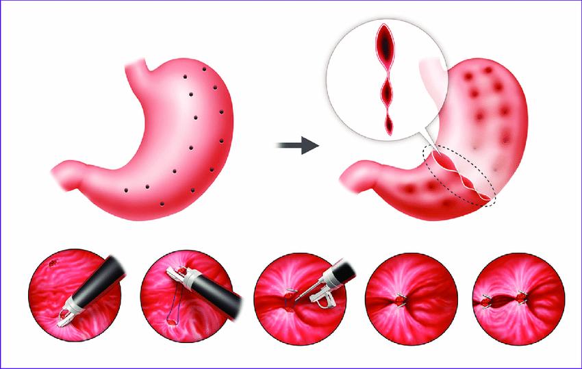 Endoscopic Gastroplasty